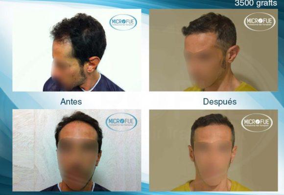 resultados_injerto_capilar_trasplante_Turquia_imagenes_fotos_10_00