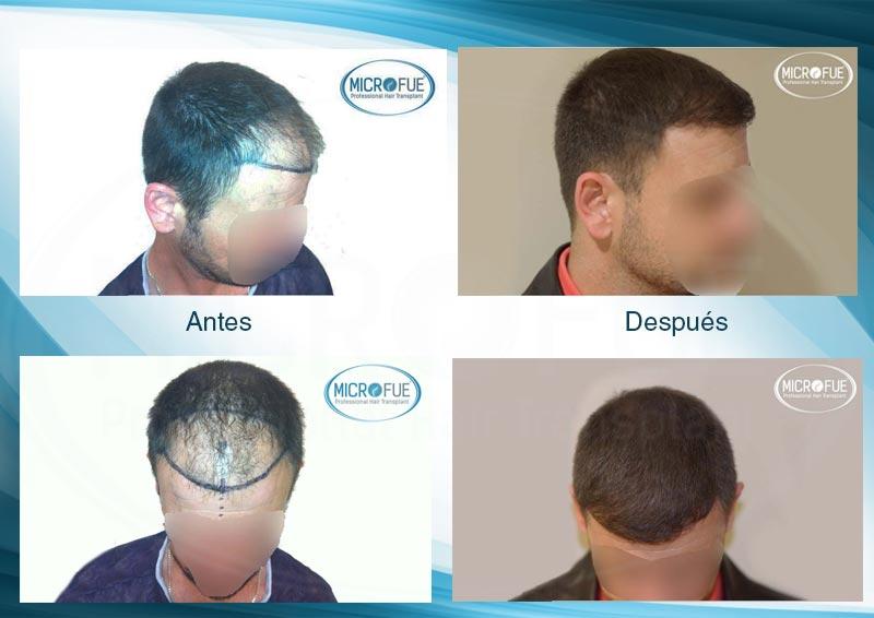 resultados_injerto_capilar_trasplante_Turquia_imagenes_fotos_11_00