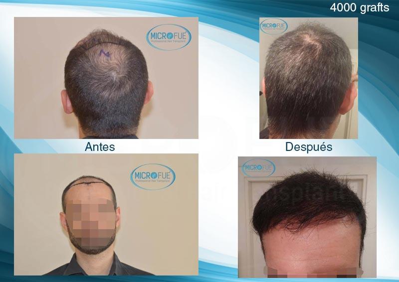 resultados_injerto_capilar_trasplante_Turquia_imagenes_fotos_12_00