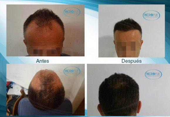 resultados_injerto_capilar_trasplante_Turquia_imagenes_fotos_13_00