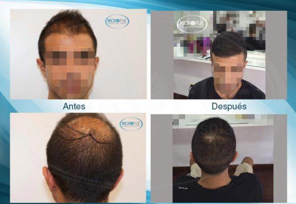 resultados_injerto_capilar_trasplante_Turquia_imagenes_fotos_18_00