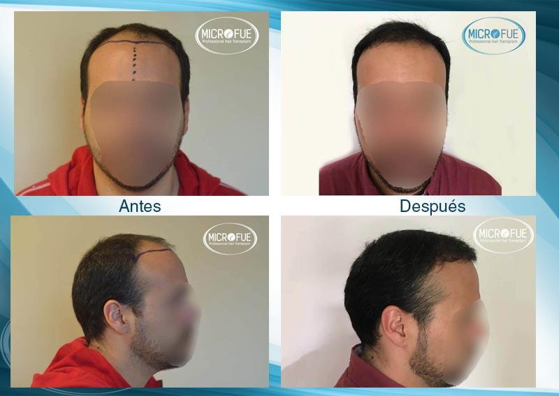 resultados_injerto_capilar_trasplante_Turquia_imagenes_fotos_6_00