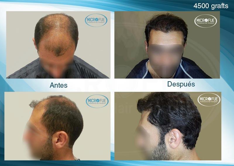 resultados_injerto_capilar_trasplante_Turquia_imagenes_fotos_8_00