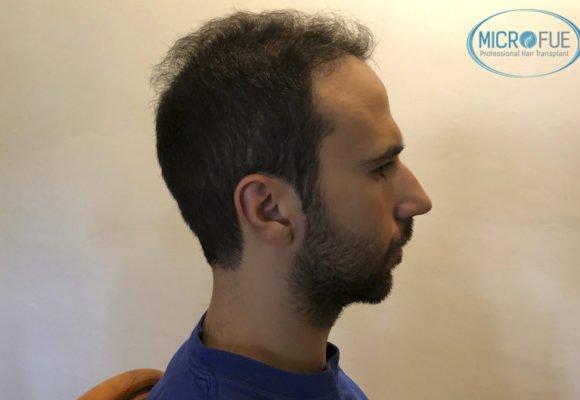 resultados_trasplante_capilar_Turquia_FUE_Microfue_06