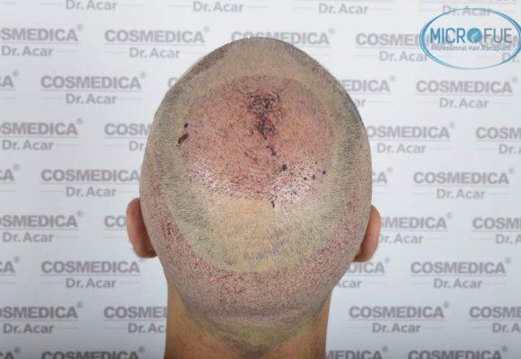 resultados_trasplante_capilar_Turquia_FUE_Microfue_07