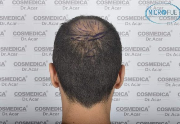 resultados_trasplante_capilar_Turquia_FUE_Microfue_13