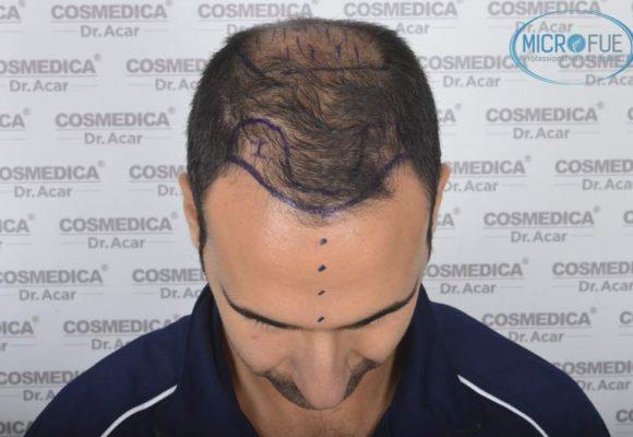 resultados_trasplante_capilar_Turquia_FUE_Microfue_19