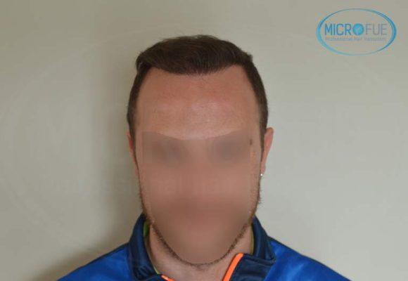 segundo_trasplante_injerto_capilar_Turquia_Microfue_20