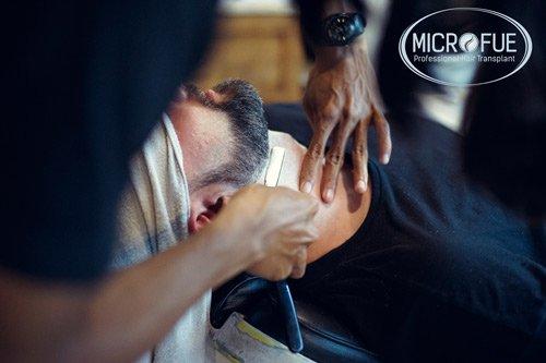 trasplante de pelo de barba Turquía Microfue
