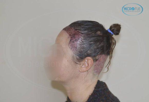 trasplante_capilar_femenino_tecnica_FUE_Turquia_Microfue_15