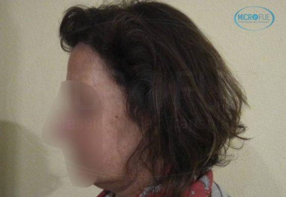 trasplante_capilar_femenino_tecnica_FUE_Turquia_Microfue_21