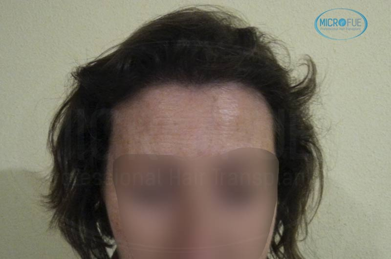 trasplante_capilar_femenino_tecnica_FUE_Turquia_Microfue_22
