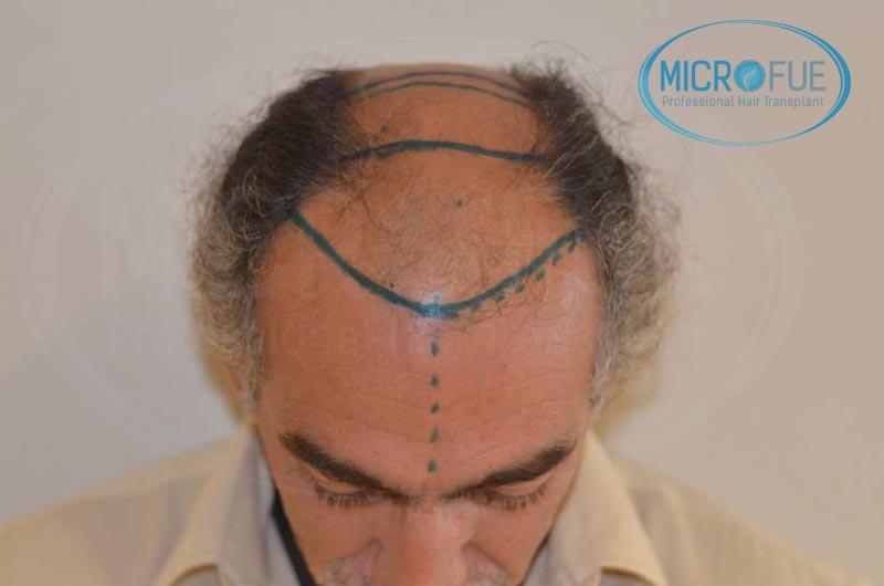trasplante_de_pelo_Turquia_tecnica_FUE_microfue_09