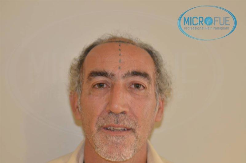 trasplante_de_pelo_Turquia_tecnica_FUE_microfue_10