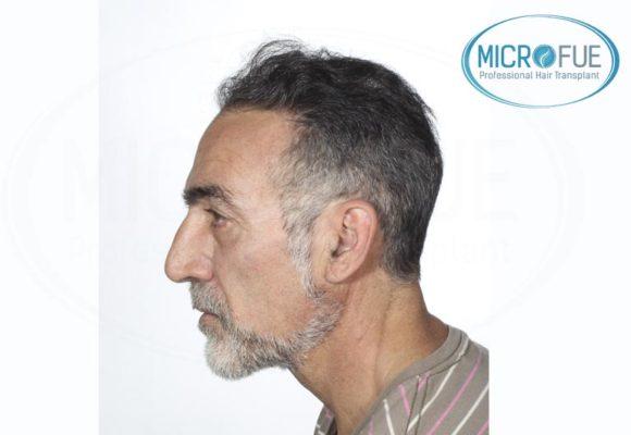 trasplante_de_pelo_Turquia_tecnica_FUE_microfue_12