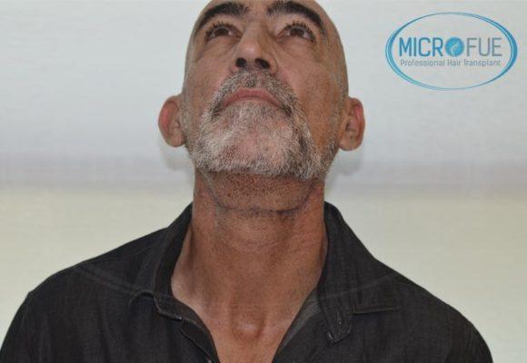 trasplante_de_pelo_Turquia_tecnica_FUE_microfue_20