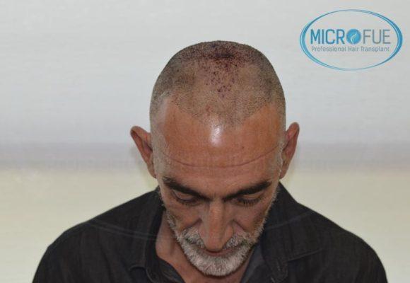 trasplante_de_pelo_Turquia_tecnica_FUE_microfue_27