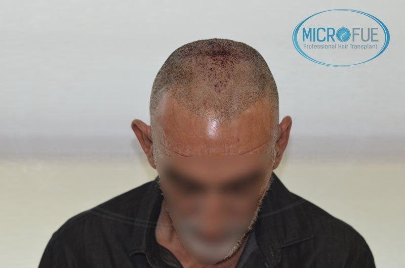 Resultados segunda intervención de trasplante capilar en Turquía