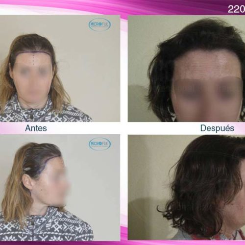 Trasplante capilar femenino en Turquía