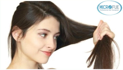 Uso de finasteride en la mujer