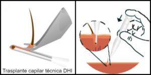 trasplante capilar método DHI Turquia Microfue
