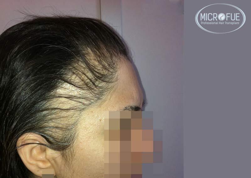 trasplante_capilar_femenino_Turquia_Microfue_00