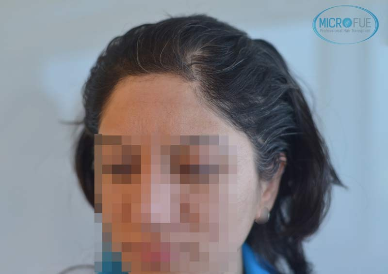 trasplante_capilar_femenino_Turquia_Microfue_02