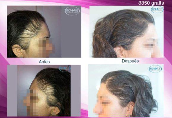 trasplante_capilar_femenino_Turquia_Microfue_buenos_resultados