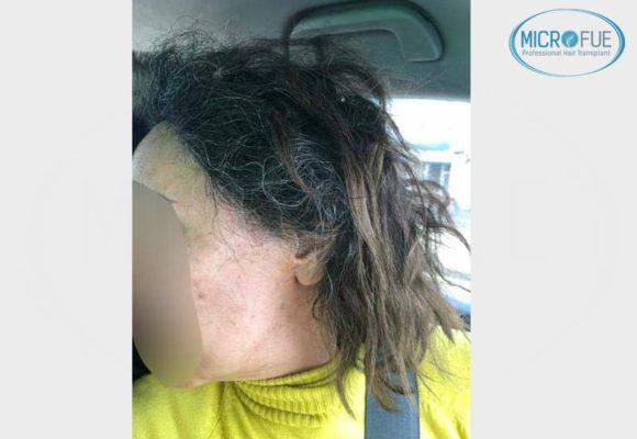 trasplante_capilar_femenino_injerto_pelo_mujer_Turquia_Microfue