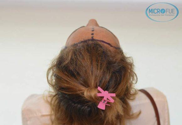 trasplante_capilar_femenino_injerto_pelo_mujer_Turquia_Microfue_11