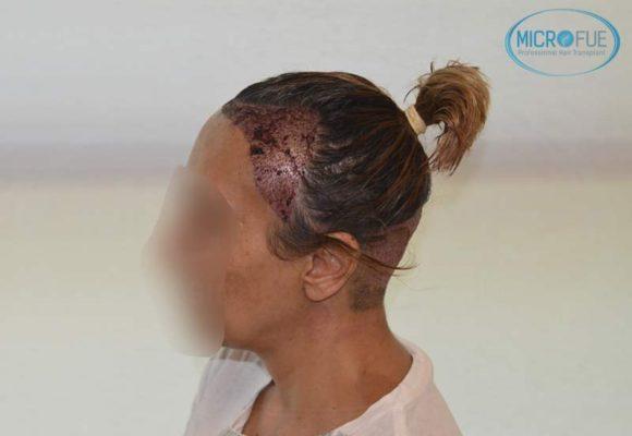 trasplante_capilar_femenino_injerto_pelo_mujer_Turquia_Microfue_14