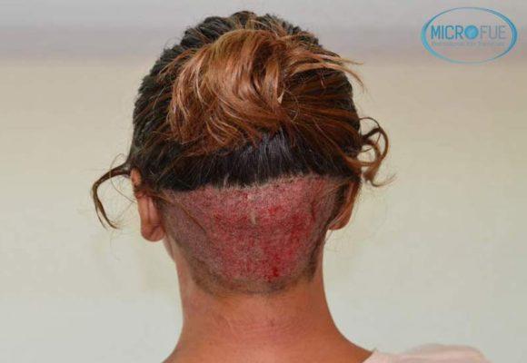 trasplante_capilar_femenino_injerto_pelo_mujer_Turquia_Microfue_4