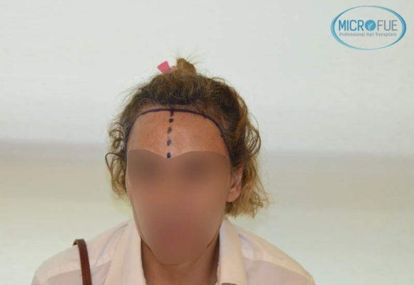 trasplante_capilar_femenino_injerto_pelo_mujer_Turquia_Microfue_6