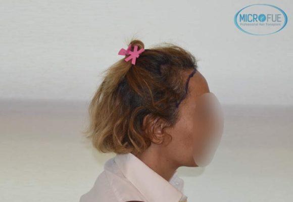 trasplante_capilar_femenino_injerto_pelo_mujer_Turquia_Microfue_8
