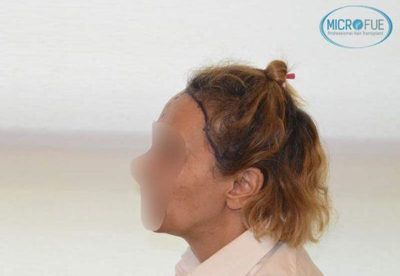 trasplante_capilar_femenino_injerto_pelo_mujer_Turquia_Microfue_9