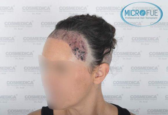 trasplante_capilar_mujer_Turquia_Microfue-04