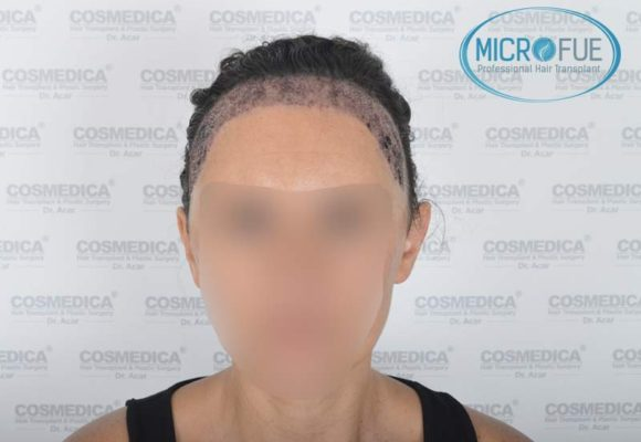 trasplante_capilar_mujer_Turquia_Microfue-06