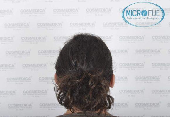 trasplante_capilar_mujer_Turquia_Microfue-07
