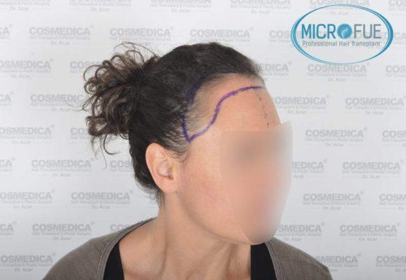 trasplante_capilar_mujer_Turquia_Microfue-08