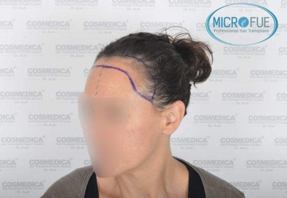 trasplante_capilar_mujer_Turquia_Microfue-09