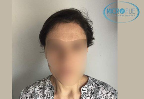 trasplante_capilar_mujer_Turquia_Microfue-12
