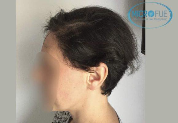 trasplante_capilar_mujer_Turquia_Microfue-13