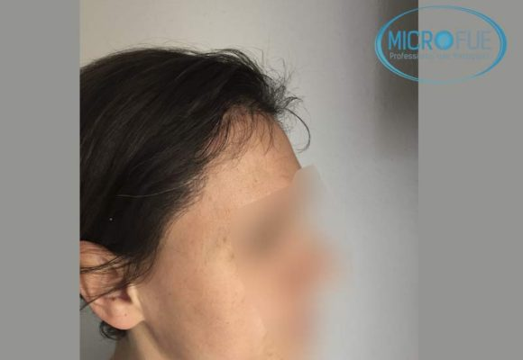 trasplante_capilar_mujer_Turquia_Microfue-14