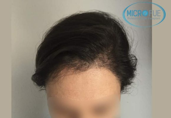 trasplante_capilar_mujer_Turquia_Microfue-15