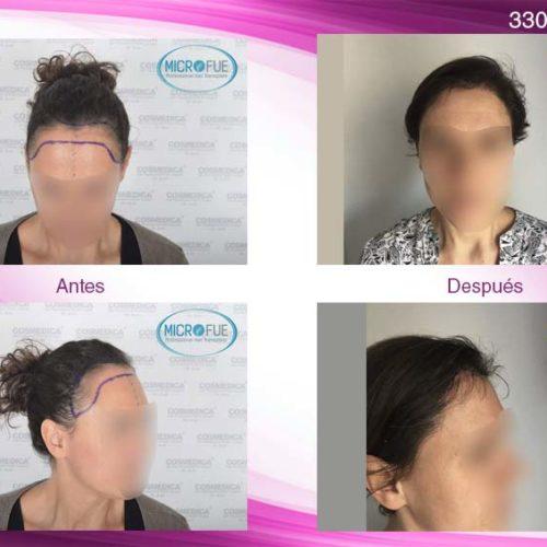 Trasplante capilar mujer en Turquía. Fotos de resultados.