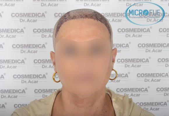 trasplante_de_pelo_mujer_Turquia_Microfue_11