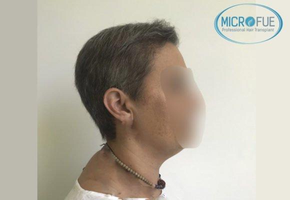 trasplante_de_pelo_mujer_Turquia_Microfue_2