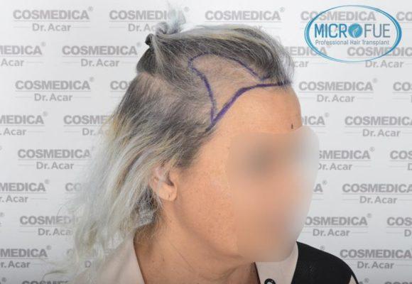 trasplante_de_pelo_mujer_Turquia_Microfue_8