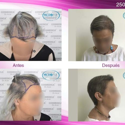 Fotos resultados trasplante capilar femenino