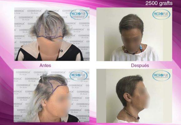 trasplante_de_pelo_mujer_Turquia_Microfue_fotos_antes_despues